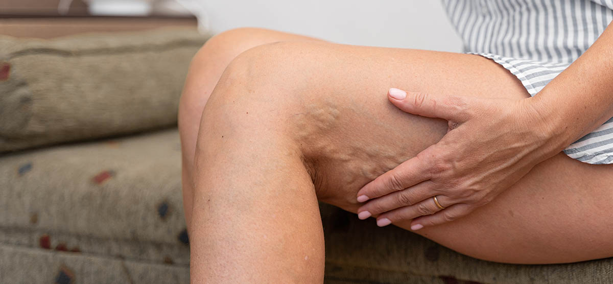 Woman at home with varicose veins